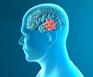 Maladie de Parkinson - Sport Santé - Activités Physiques Thérapeutiques à Luxembourg