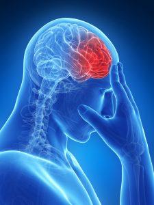 Accident Vasculaire Cérébral - AVC - Sport Santé - Activités Physiques Thérapeutiques à Luxembourg
